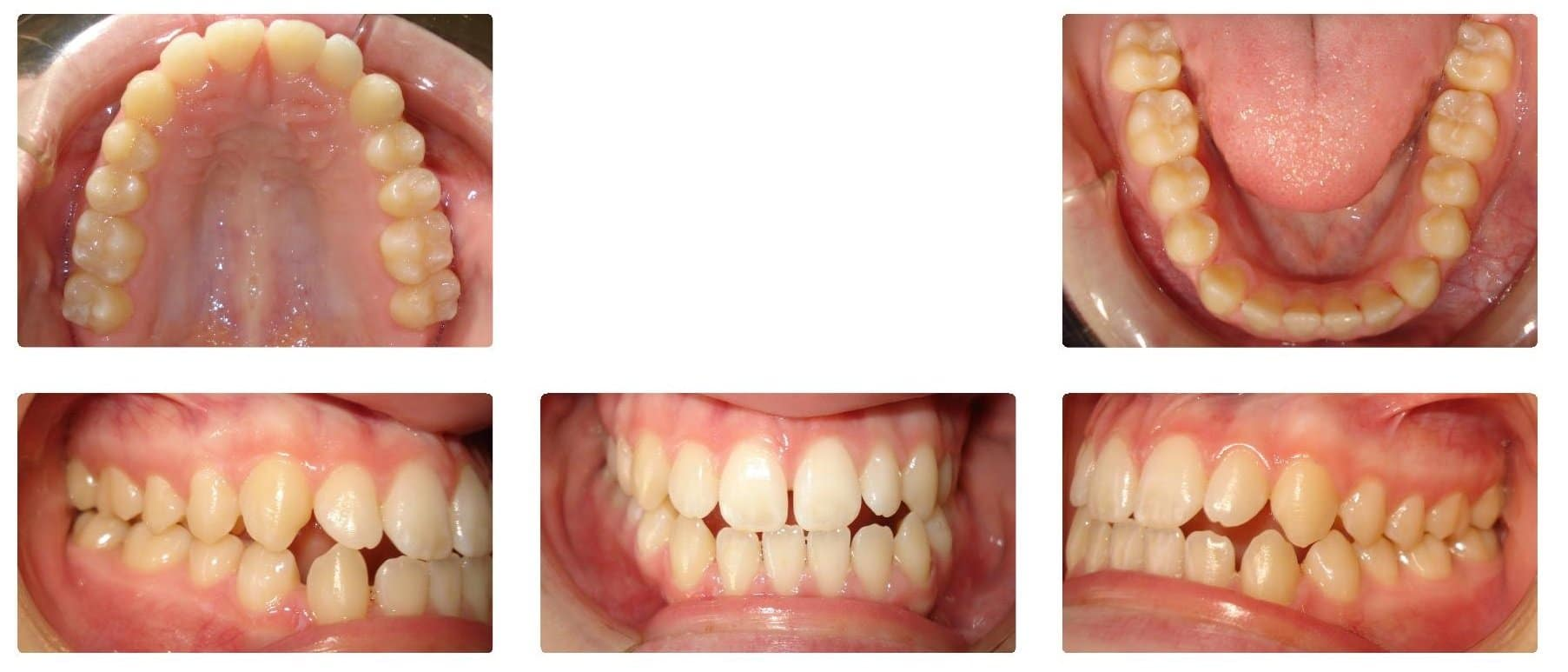 NJ Orthodontist - Invisalign & Braces | West Windsor